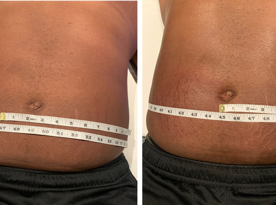 CryoSlimming Stomach Before and After Cryoskin