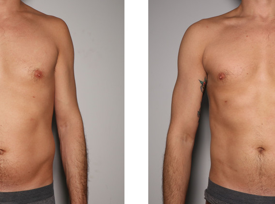 Cryoskin Male Stomach Toning Week 1 Before and After