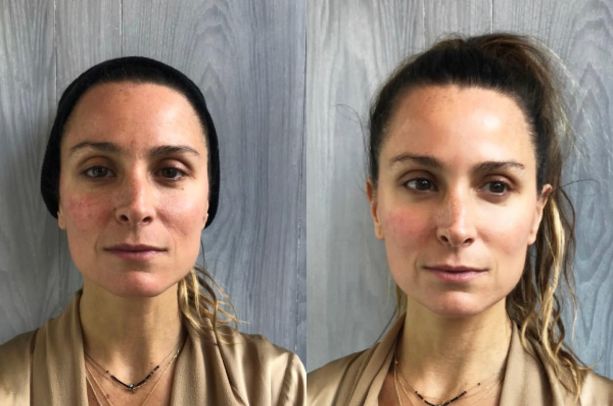 Cryoskin Facial CryoToning CryoFacial Before and After