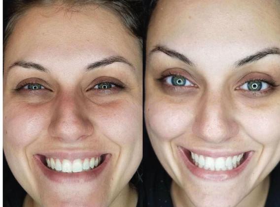 Cryoskin CryoFacial Before and After