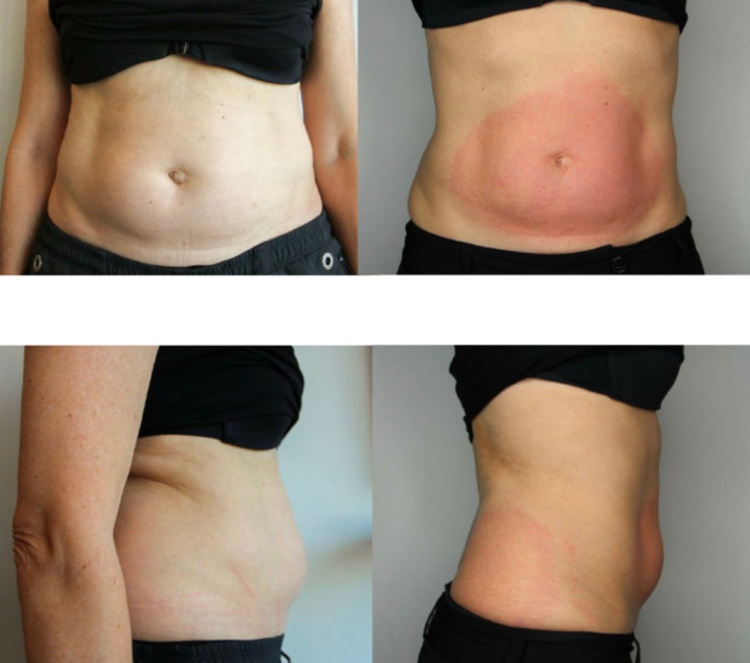 Cryoskin Slimming Toning Before and After Stomach
