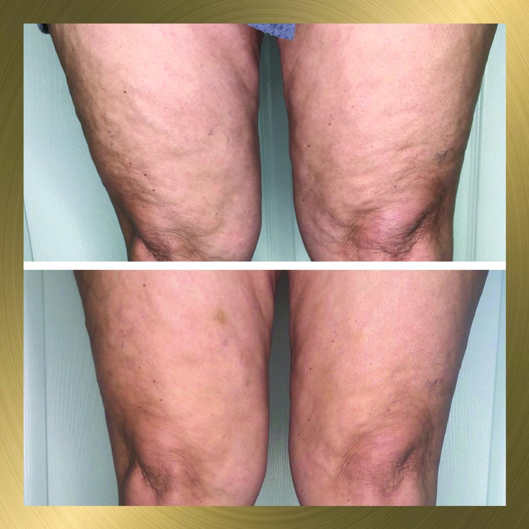 Cryoskin leg after post3