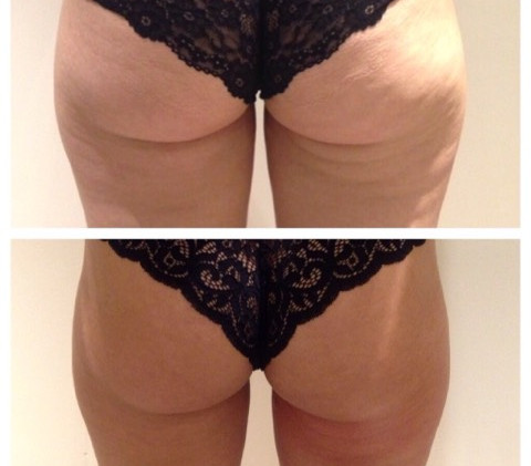 Cryoskin Back of Thigh Toning- Before & After Cellulite