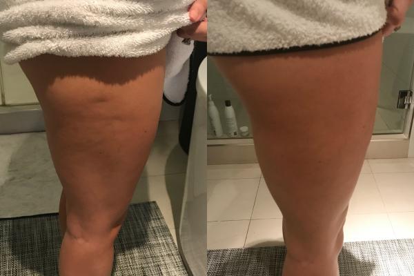 Cryoskin Leg Toning- Before & After CryoToning Cellulite