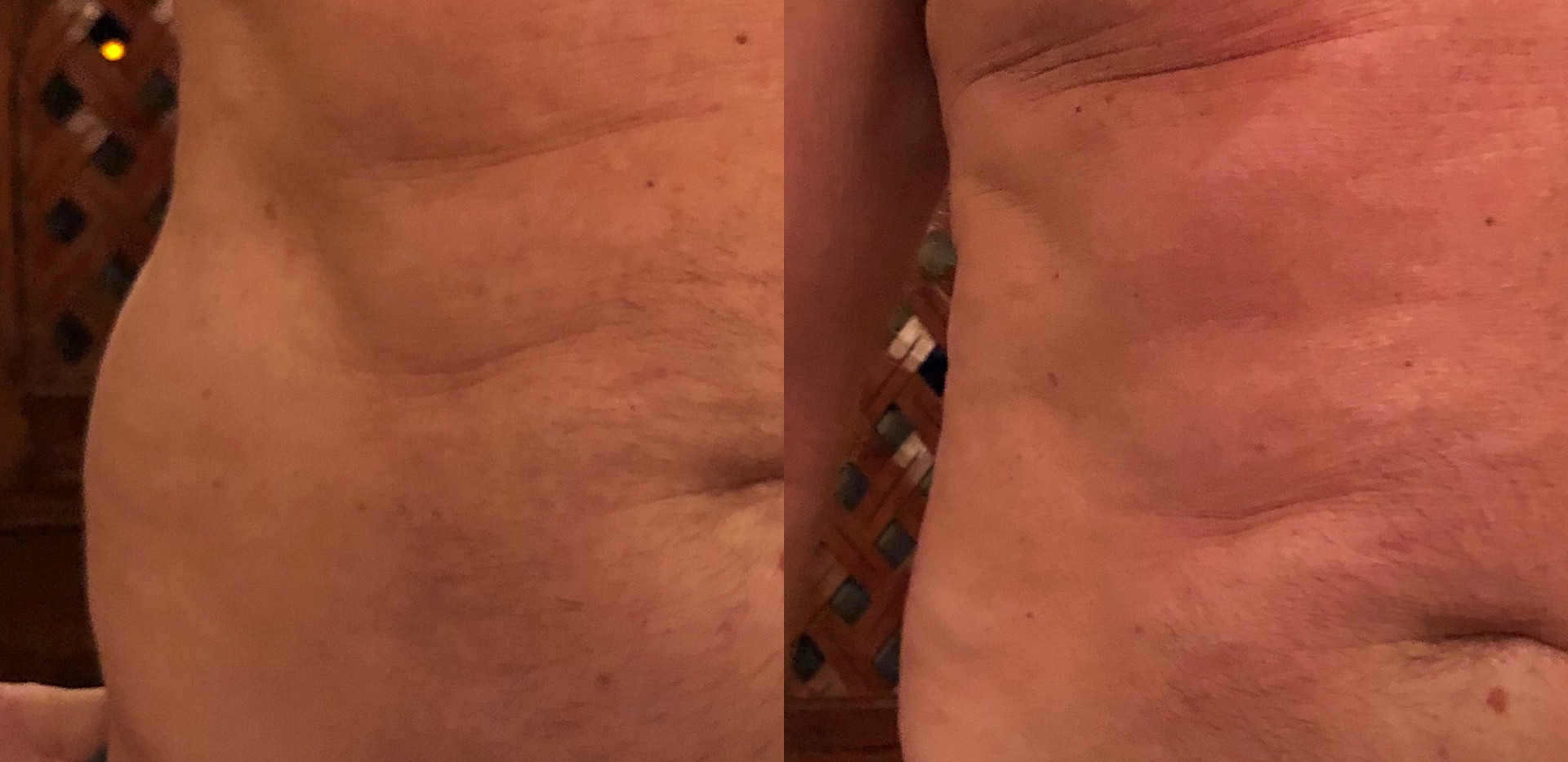 Cryoskin Love Handles- Before & After