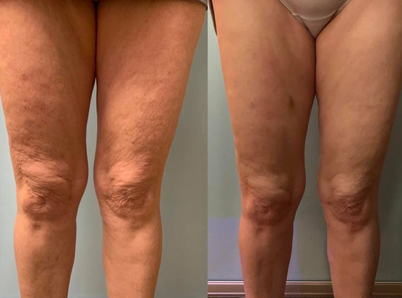 Cryoskin Cryotoning Legs Cellulite Before and After