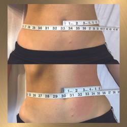 Abdomen slimming after post4