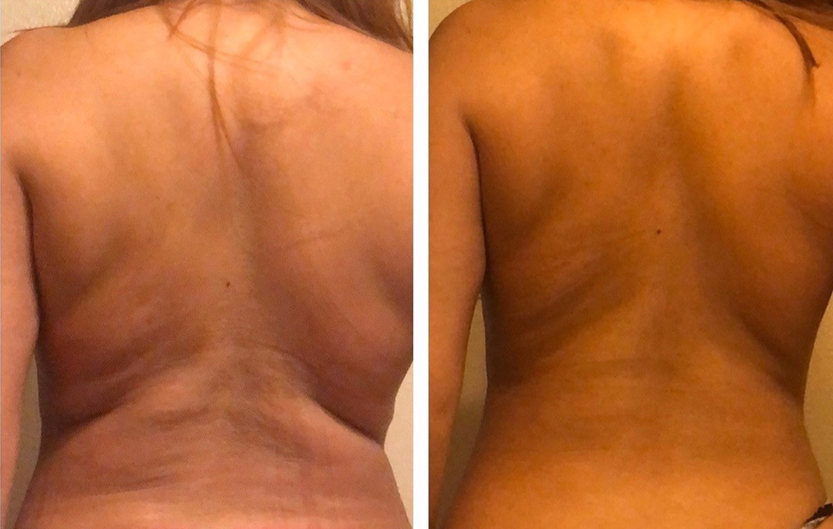 Cryoskin Back CryoToning Before and After