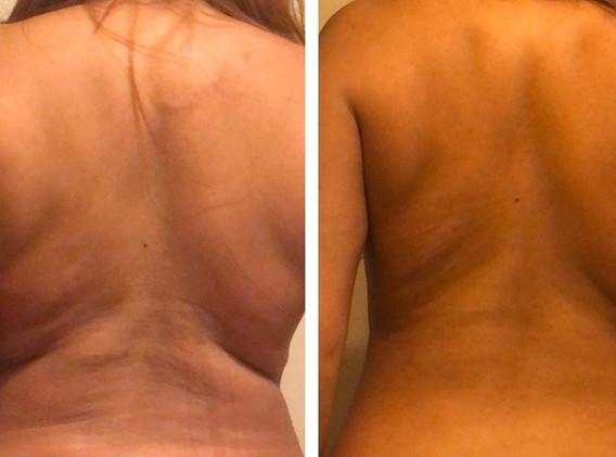Cryoskin Back CryoToning Before and After