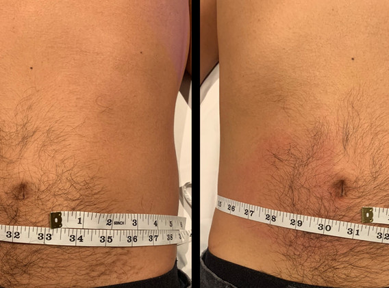Cryoskin Abdomen CryoSlimming Before and After