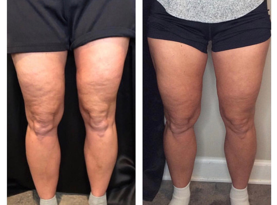 Cryoskin Toning Legs Before and After Cellulite
