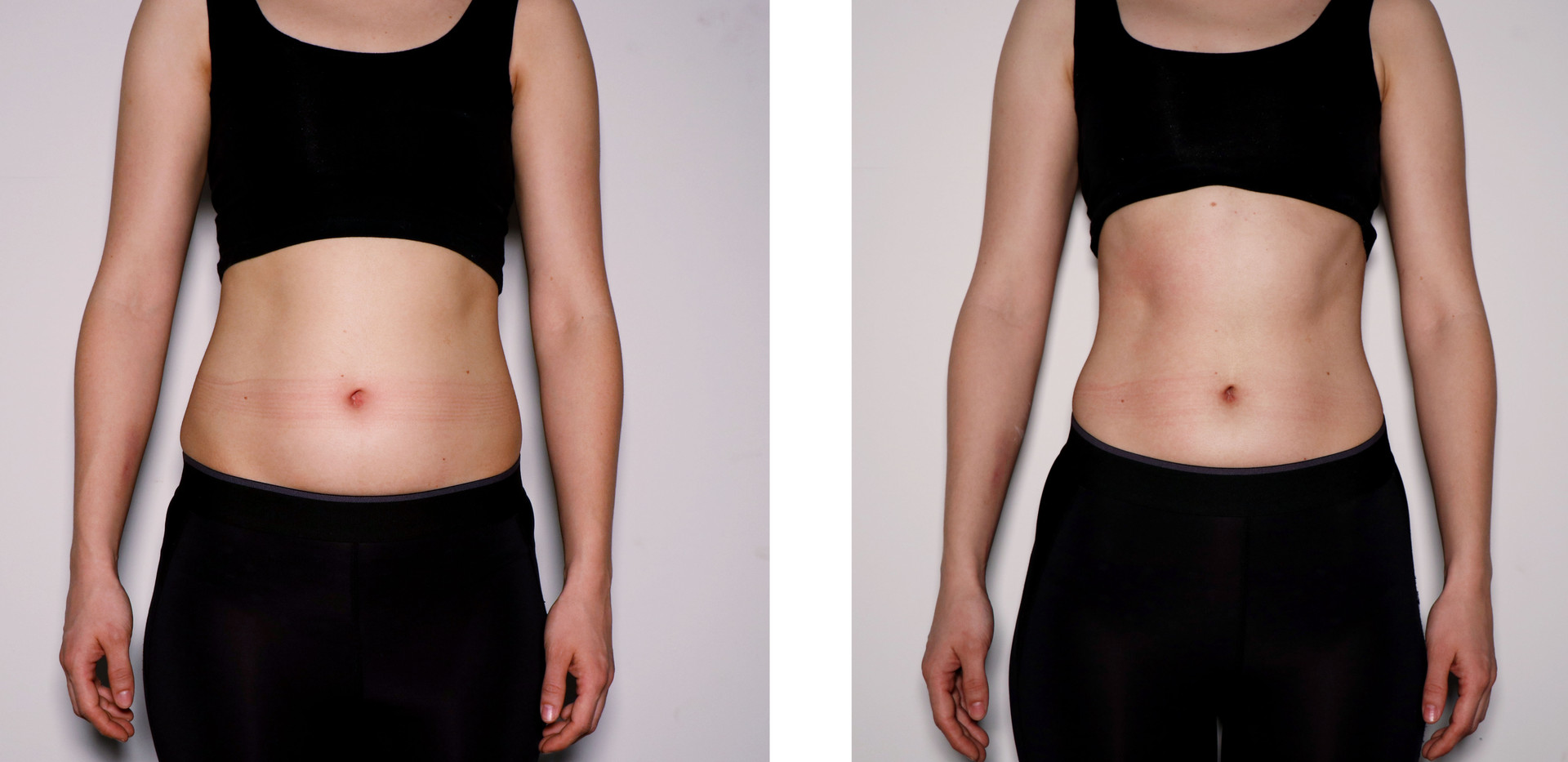 Cryoskin Female Abdomen Toning- Before & After