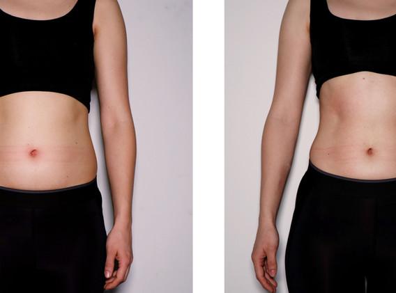 Cryoskin Female Abdomen Toning- Before & After