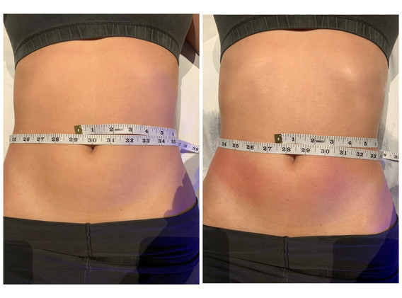 CryoSlimming Abdomen Before and After