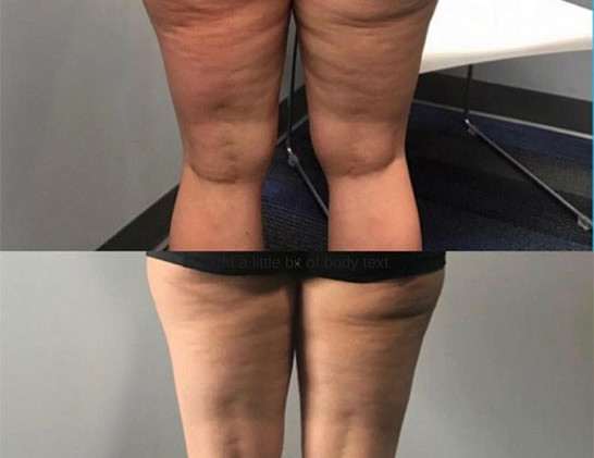 Cryoskin Before and After CryoToning Cellulite