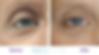 Best Eye Cream for bags under the eyes