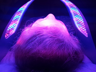 Acupuncture & Low Level Light Therapy Face Lift