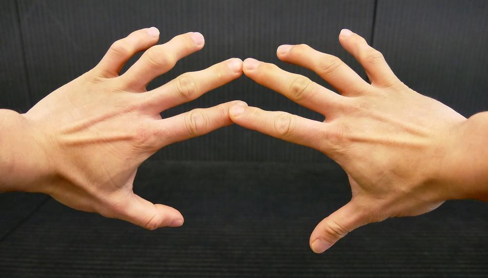Jiujitsu fingers, less or more desirable than cauliflower ears?