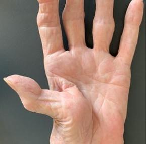 Пац.4 Ризартроза /Rhizarthrosis/