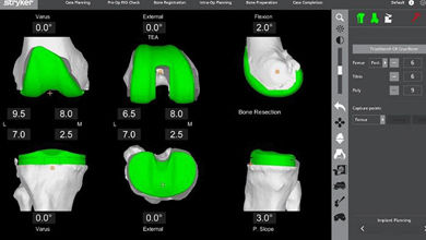 CT-Scan1.jpg