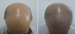 man scalp