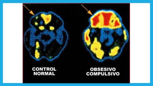 scan_cerebral_de_persona_con_ocd_toc