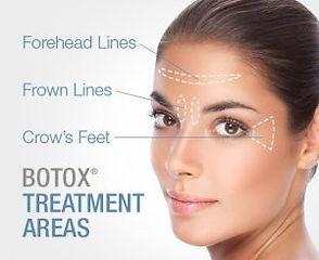 Botox-ReGen Aesthetics.jpg