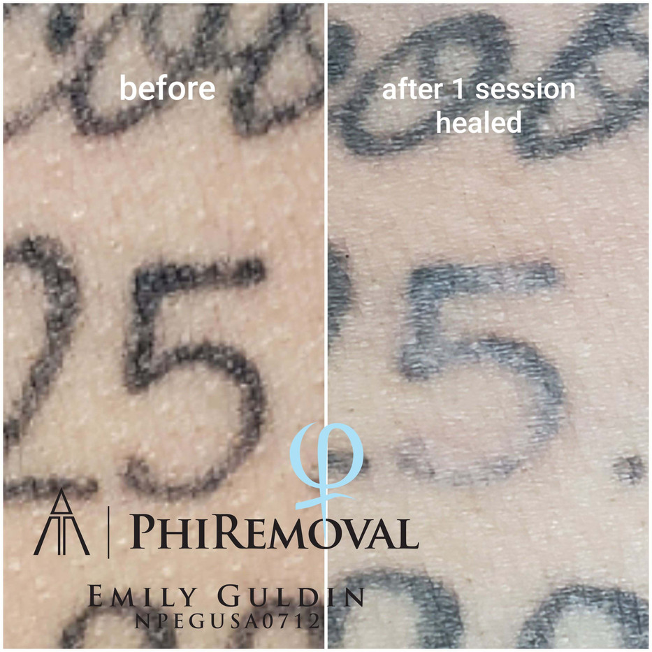 phiremoval 1.jpg