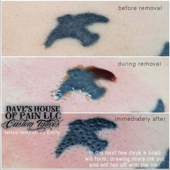 tattoo removal by emily.jpg