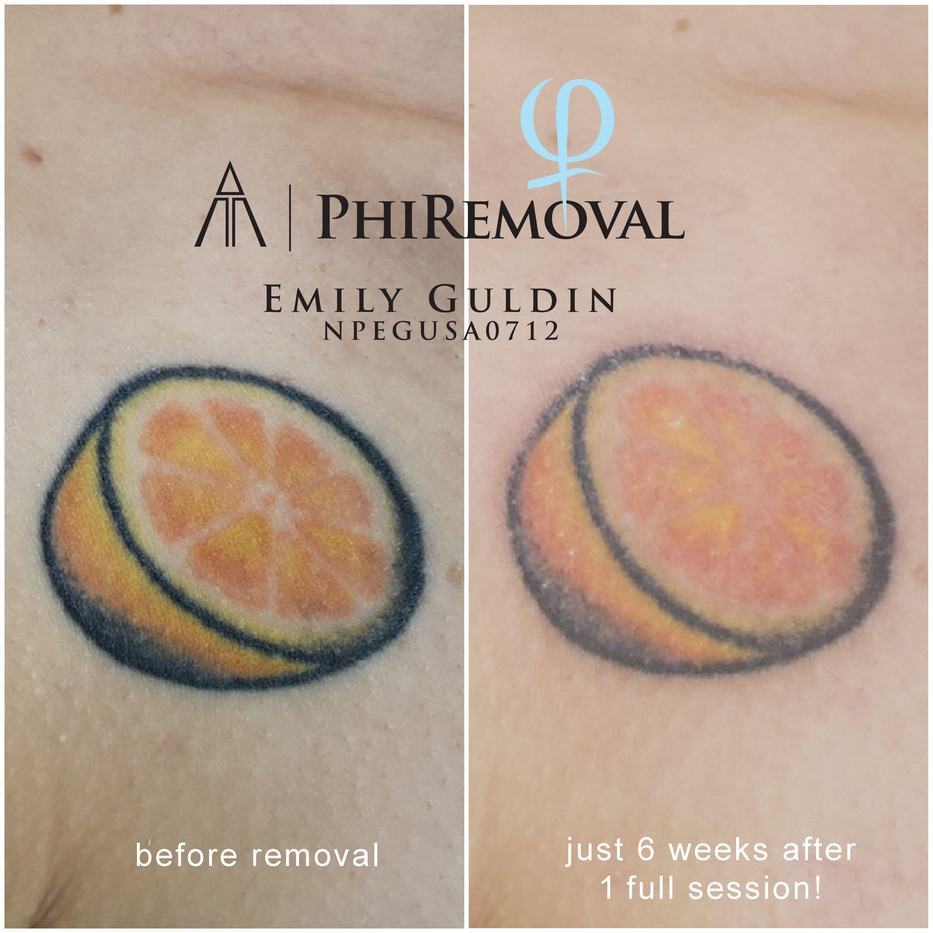 logoed healed pic removal.jpg
