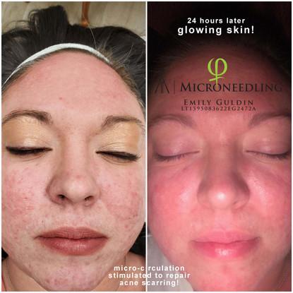 logo acne scar repair.jpg