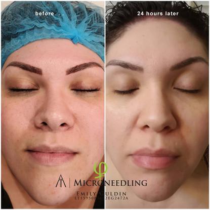 smoothing out skin 2.jpg