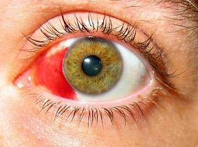 subconjunctival haemorrhage.jpg