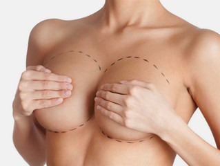 Shape Is Everything: How To Choose Breast Implants From 'Endless' Options