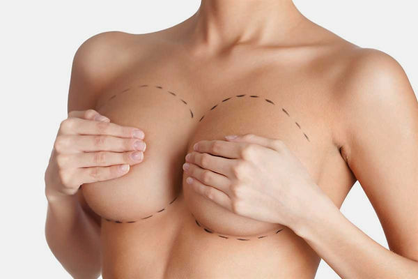best breast augmentation surgeon