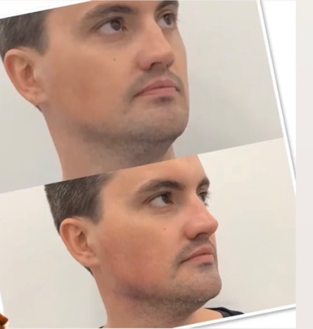 Jawline Definition with Filler