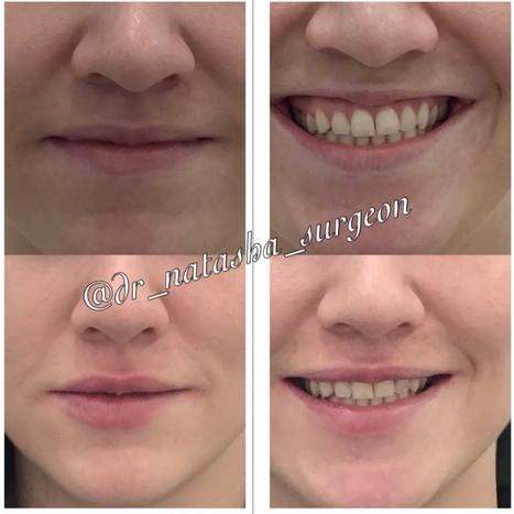 Lip Filler & Botox for Gummy Smile
