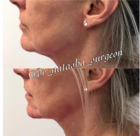 Chin & Jawline Definition with Filler