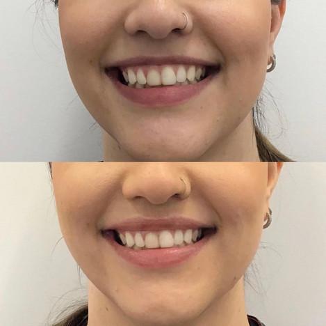 Lip Flick with Botox
