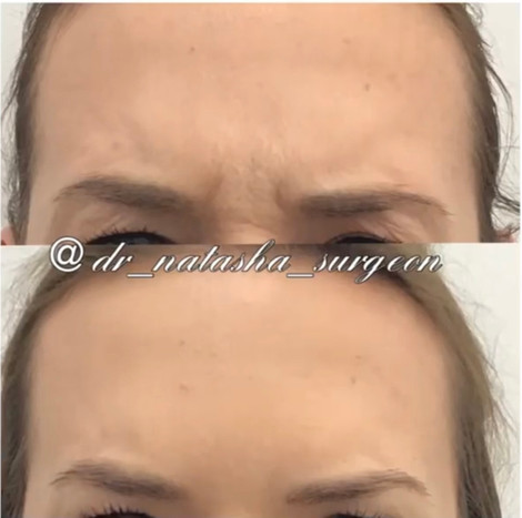 Frown Line Botox