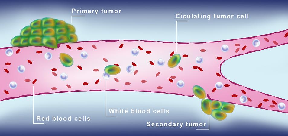 tumor cell _ editado-01.png