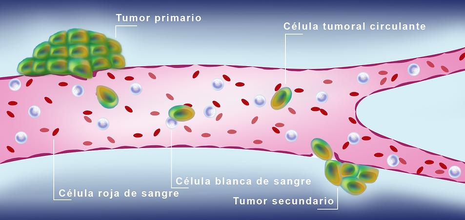 tumor_cell_Español-01.png
