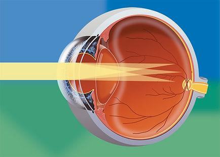 cirurgia refrativa, cirurgia miopia, cirurgia correção grau, cirurgia hipermetropia, correção grau, cirurgia a laser, lasik, prk, cirurgia oftalmologica, cirurgia olhos, exame oculos, vista cansada