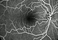 Clínica olho marcar consulta Sorriso Oftalmologia, focus oftalmologia, bernardo martins, savio milbratz, oftalmologia sorriso, oftalmopediatria, cirurgia estrabismo, medico sorriso, consulta medica sorriso,ceratocone, retina, descolamento de retina, anel de ferrara, lente de contato, glaucoma, tratamento catarata, cirurgia catarata, angiofluoresceinografia