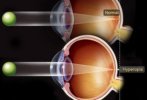 cirurgia refrativa, cirurgia miopia, cirurgia correção grau, cirurgia hipermetropia, correção grau, cirurgia a laser, lasik, prk, cirurgia oftalmologica, cirurgia olhos, visao riom para perto, exame oculos