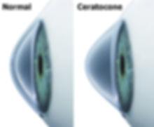 anel de ferrara, ceratocone, lente rigida, lente para ceratocone, lente de contato rigida, transplante de cornea