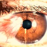 cirurgia de pterigio, pterigio, exerese de pterigio, bernardo ruben pinto martins, bernardo martins, focus oftalmologia, focus, oftalmologia sorriso