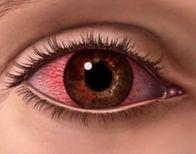 urgencias oftalmologicas,  oftalmologia sorriso, bernardo martins, bernardo ruben pinto martins, trauma ocular, uveites, corpor estranho corneano, queimadura por solda