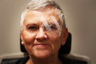 lente multifocal, lentes multifocais, cirurgia catarata, correção grau, cirurgia correção grau, bernardo martins, focus oftalmologia, oftalmologia sorriso, oftalmologista sorriso, tratamento cegueira, cuidados cirugia ocular