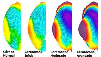 anel de ferrara, ceratocone, lente rigida, lente para ceratocone, lente de contato rigida, transplante de cornea, topografia de cornea, alergia ocular